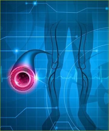 Illustration of Arteries