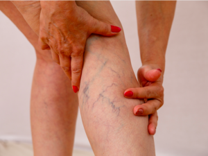 concerned about varicose veins