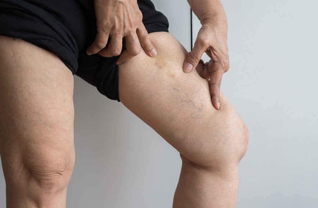 What Causes Spider and Varicose Veins?